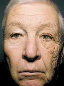 UV Damage to Left Face via Truck Window